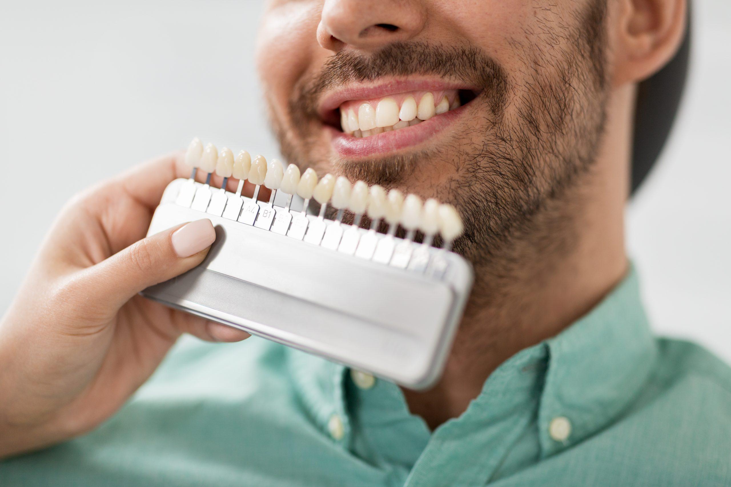 Dental Veneers in Rincon GA